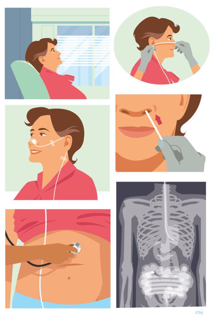 illustrations nutrition entérale